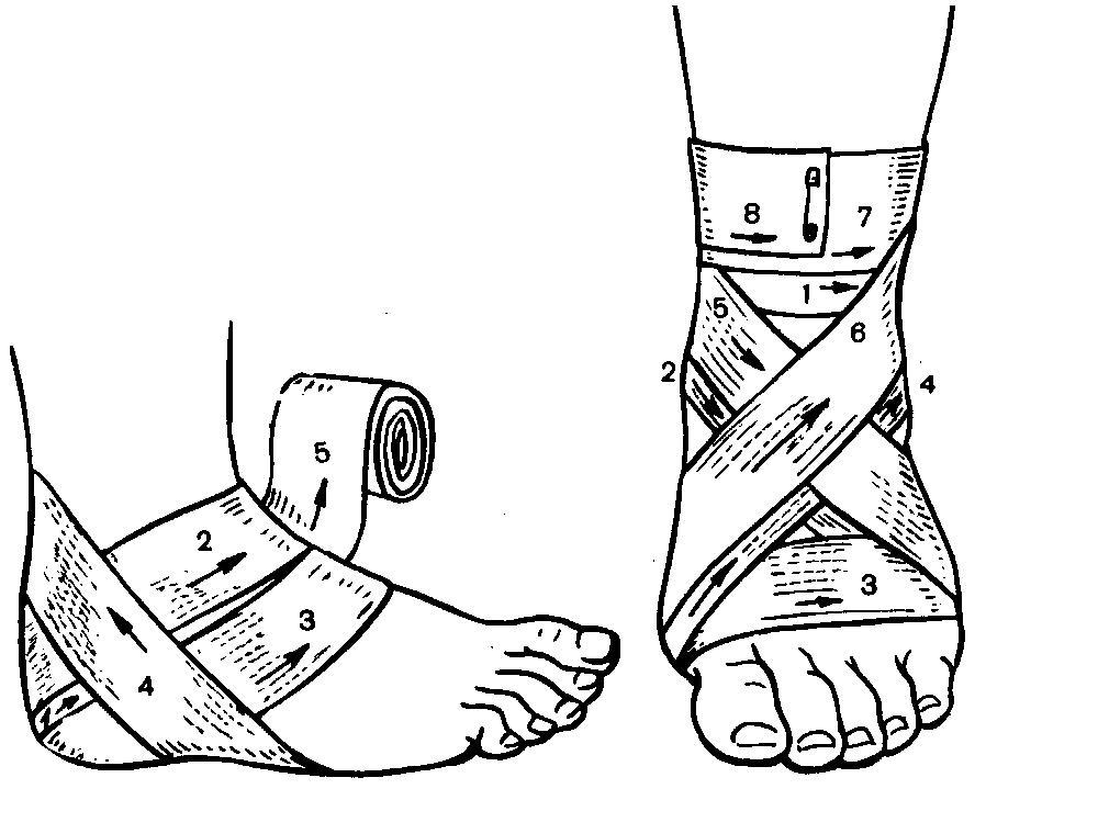 Наложение повязки на плечевой